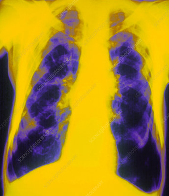 Col X-ray: chronic pulmonary disease (emphysema)