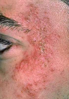 Eczema on the side of a man's face