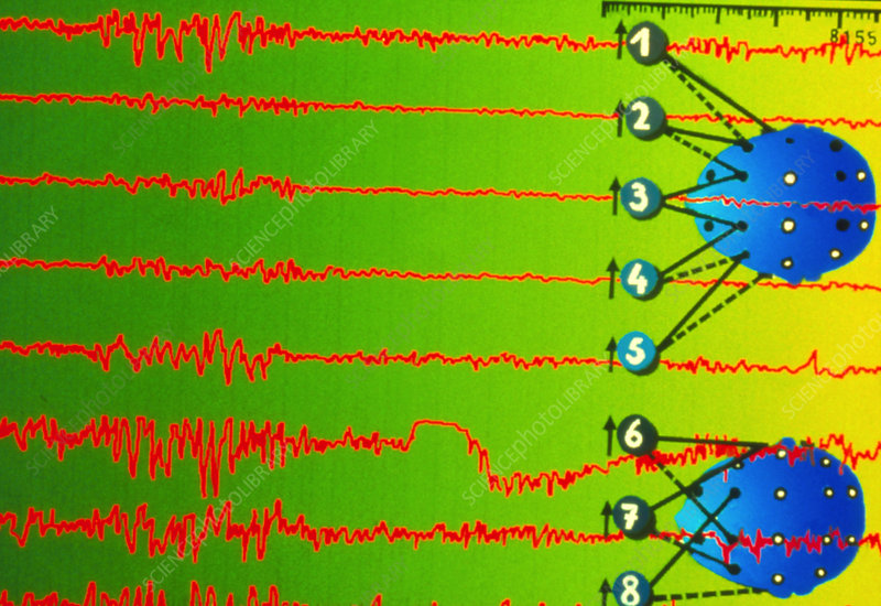 Coloured EEG of epileptic seizure
