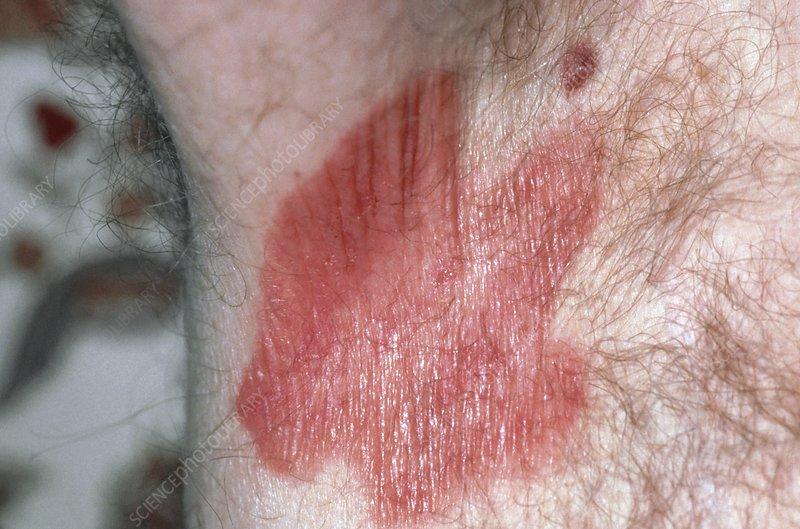 Erythrasma skin infection in man's armpit