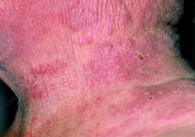 Neck of patient with eczema rash, and shingles