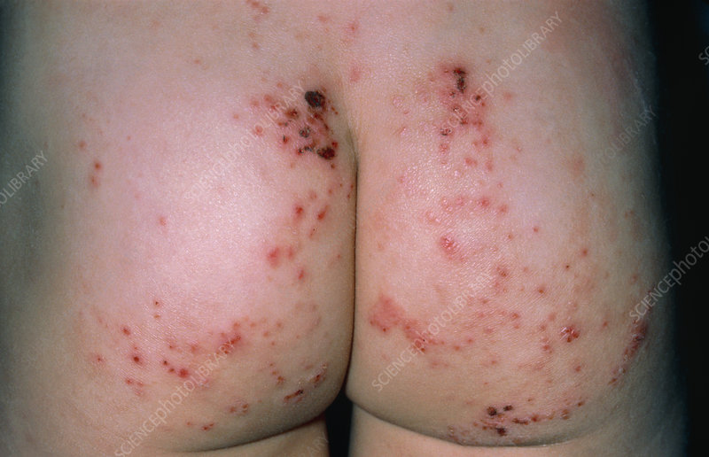 Infected Eczema On Buttocks Stock Image M150 0141