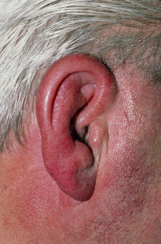 можете у ребенка сильно опухло около ухо и щека своим внешним