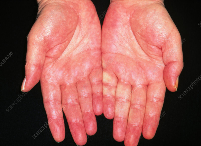 Liver palms erythema of adult alcoholic