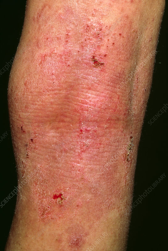 Acute eczema seen on the leg of 12 year-old boy