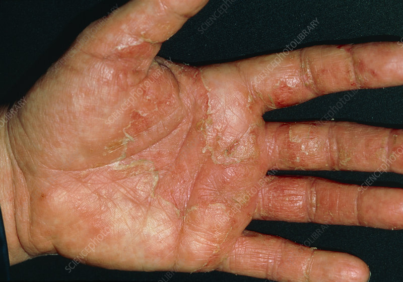 Close-up of patient's hands with discoid eczema - Stock