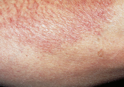 How Do I Know If I Have Dermatitis Or Scabies