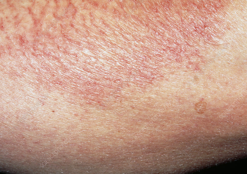 Close-up of patch of asteatotic eczema on skin
