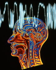 Epilepsy: MRI brain scan and EEG trace