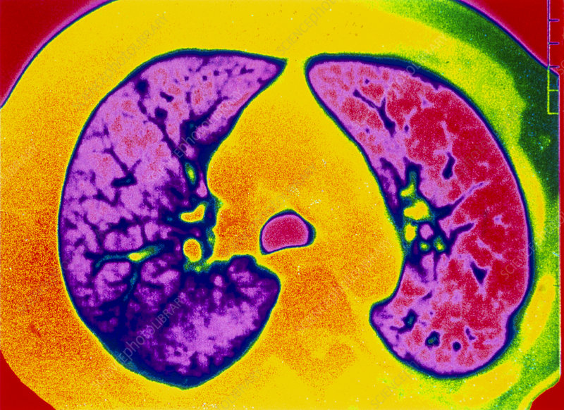Coloured CT scan of a lung with emphysema
