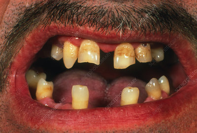 Irregular dentition caused by ectodermal dysplasia