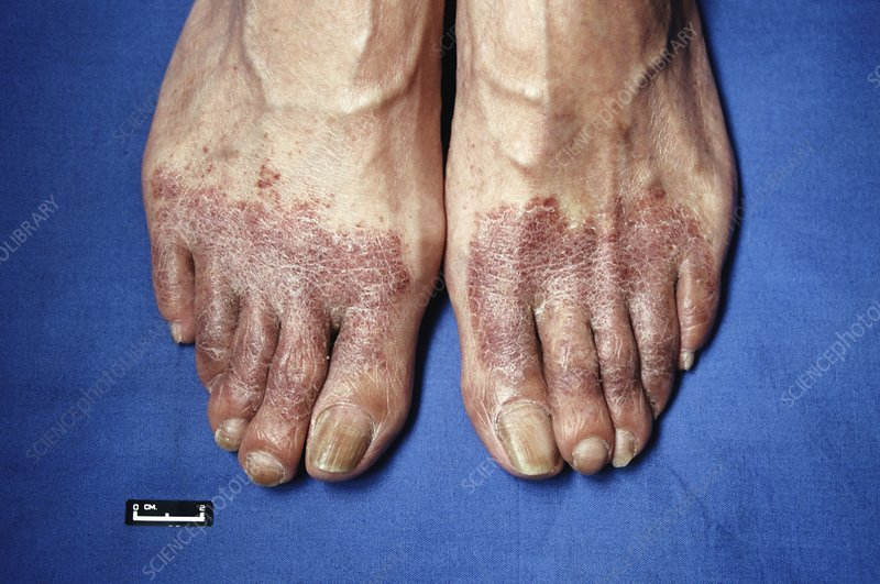 Rashes on the feet - RightDiagnosis.com