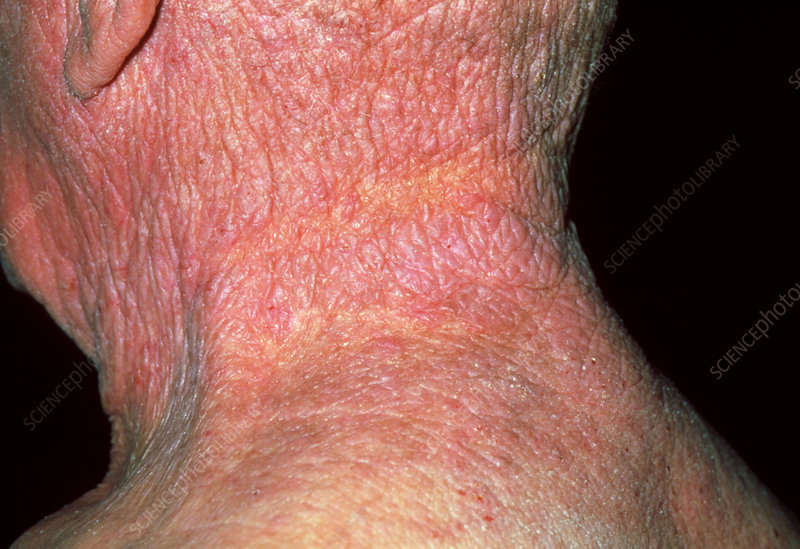Lichenification caused by eczema on a man's neck