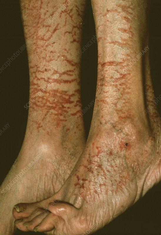 eczema on shins - photo #10