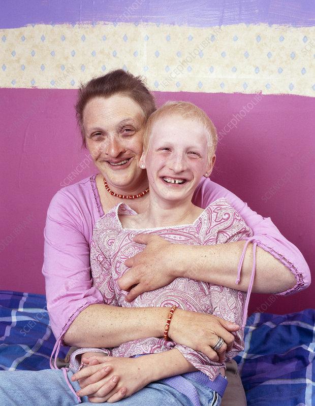 Ectodermal dysplasia - Stock Image M150/0213 - Science ...