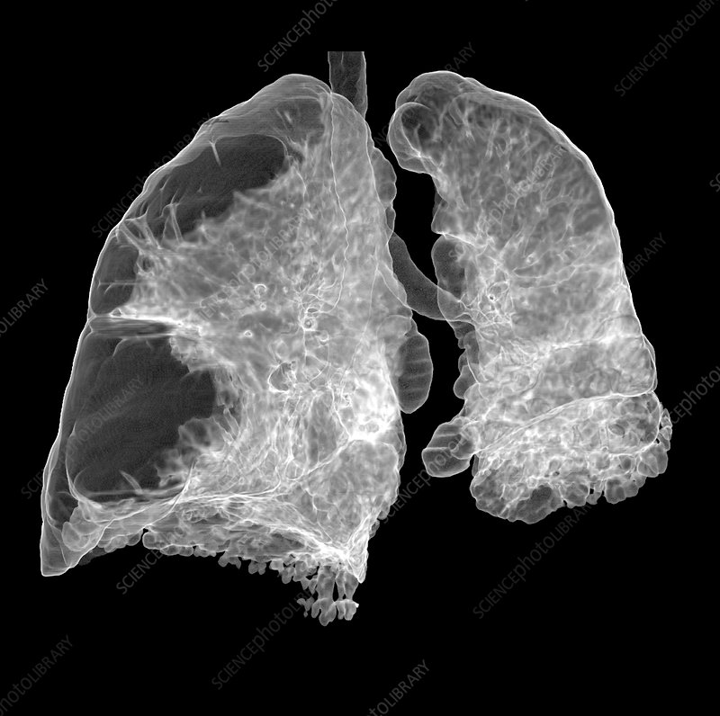 Lung CT Scan