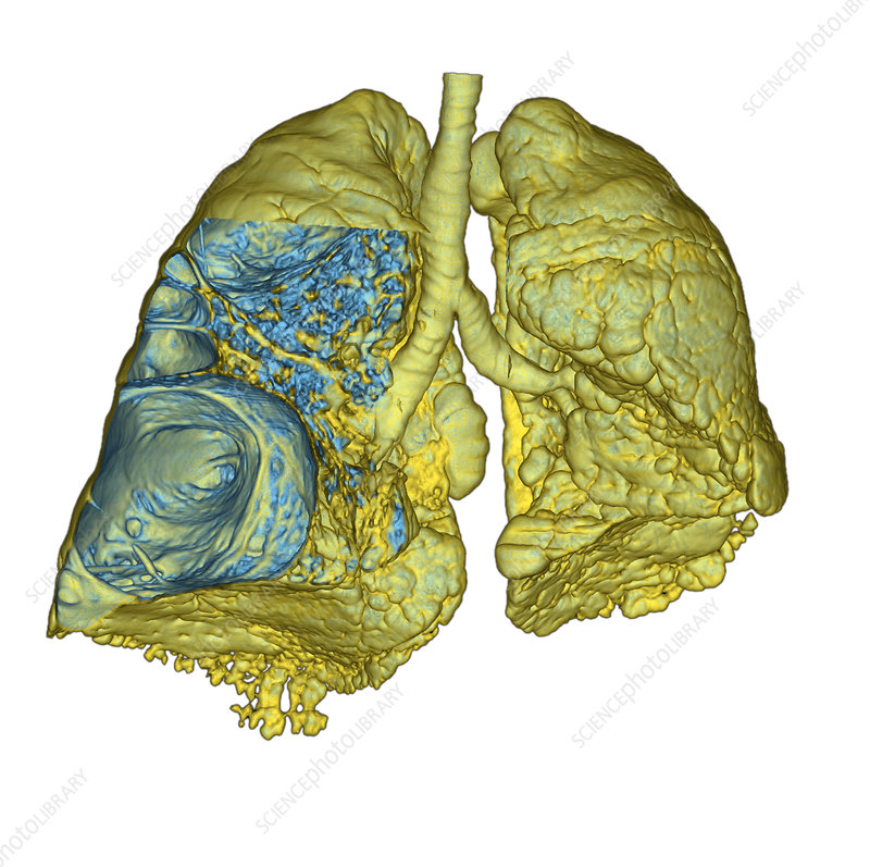 Emphysema of the lungs, CT scan