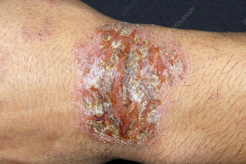 Infected eczema