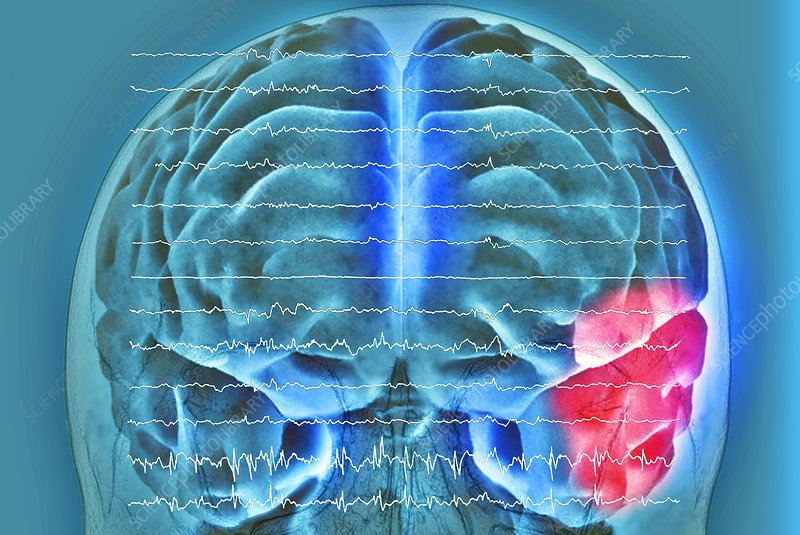 Brain and brain waves in epilepsy