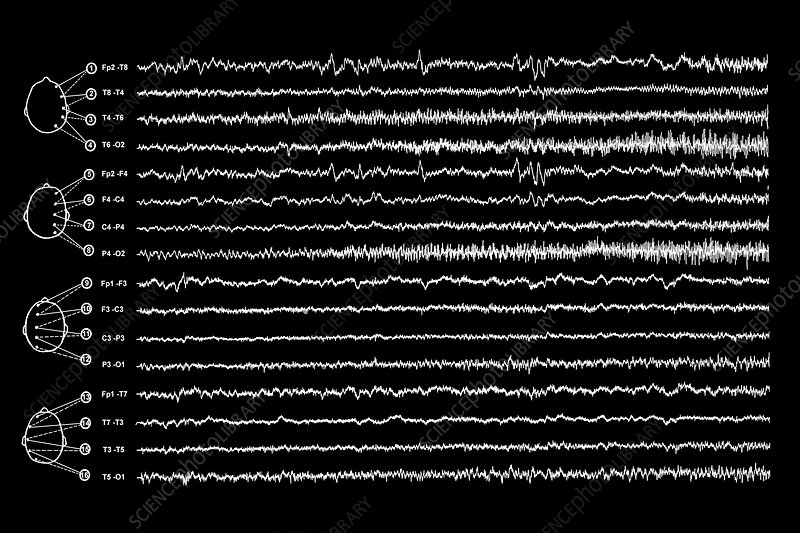 Brain waves in epilepsy