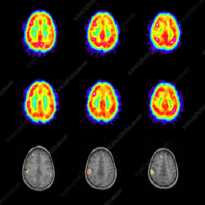 Epilepsy, SPECT and MRI scans