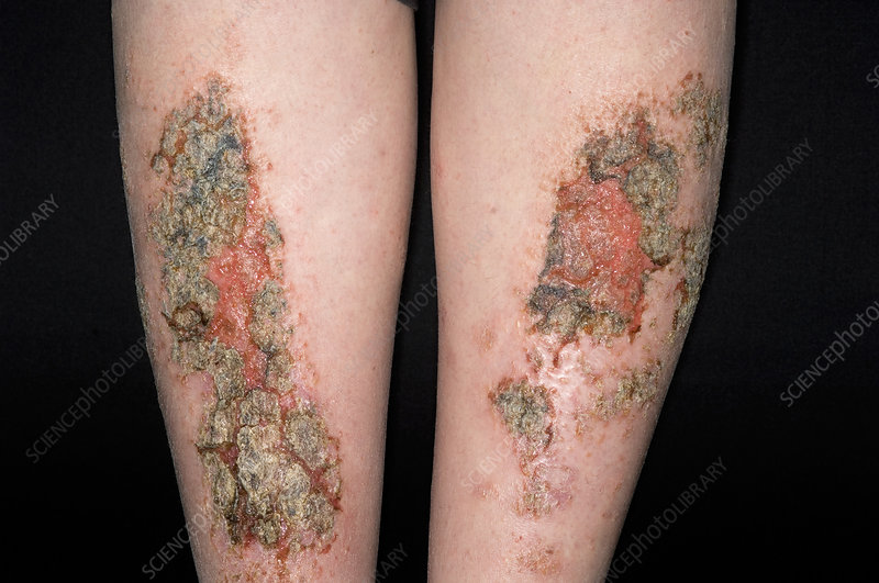 Infected eczema plaques