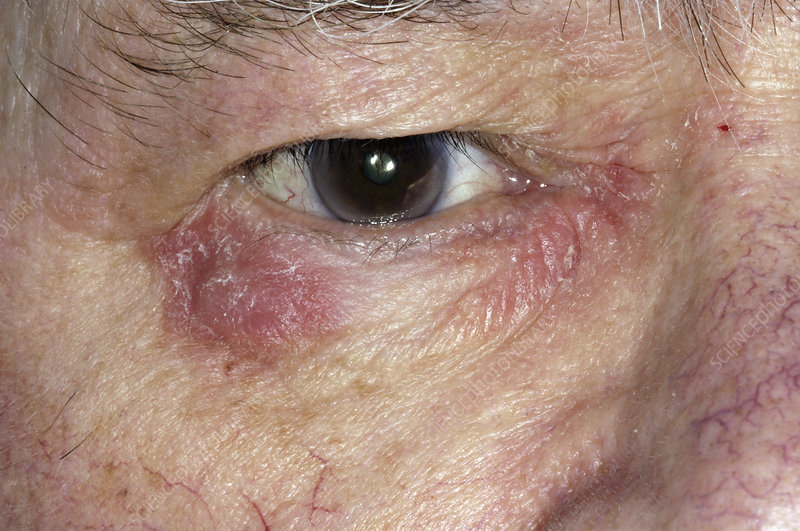Eczema around the eye