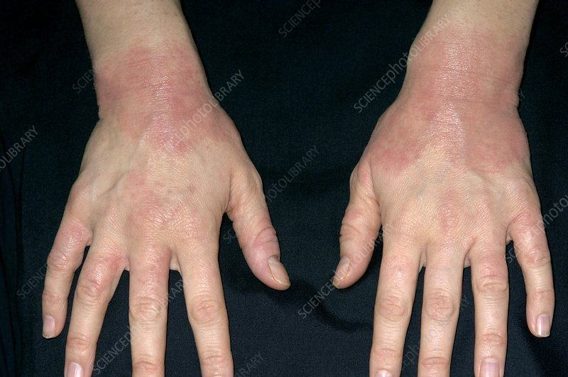Eczema affecting the wrists