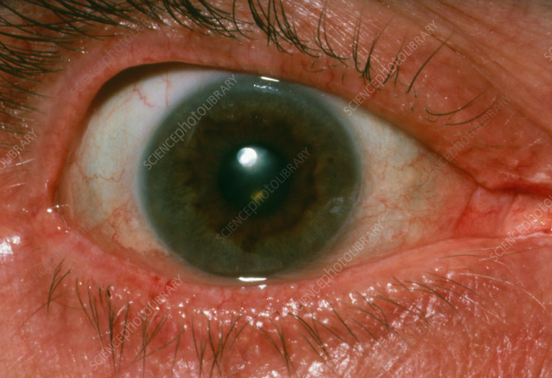 Kayser-Fleisher ring on rim of iris of the eye