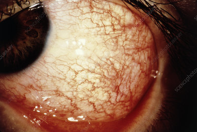 Close up of conjunctivitis in the eye