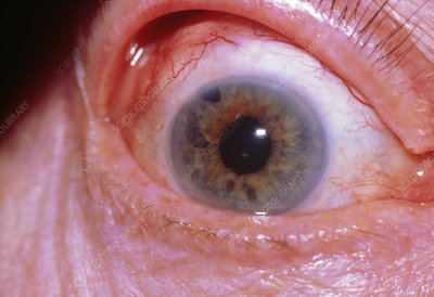 Glaucoma: trabeculectomy mark in iris