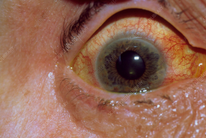 Glaucoma: close-up of inflamed eye