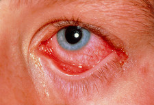 Conjunctivitis (conventional photo of eye)