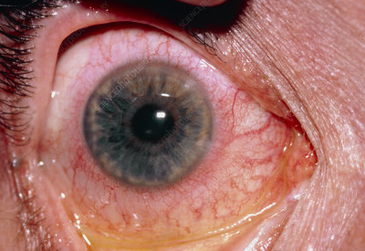 Close-up of an eye with acute iritis