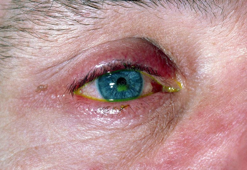 Corneal abrasion stained with fluorescein