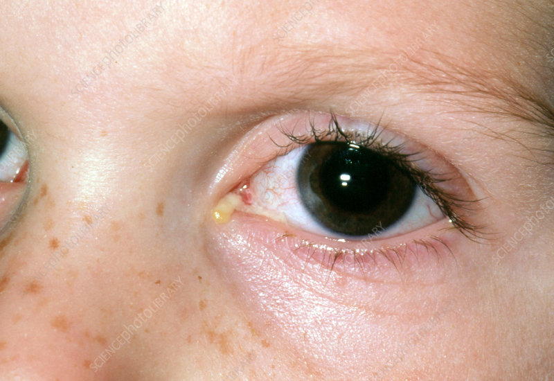 Acute conjunctivitis, child's eye