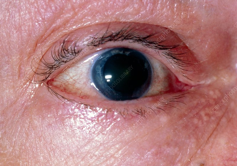 Changes to iris following trabeculectomy