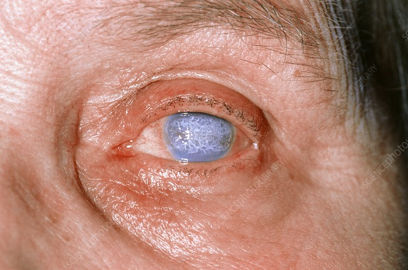 Severe corneal scarring in an elderly lady
