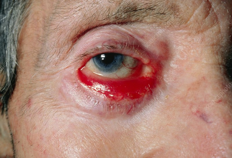 Ectropion, the turning out of an eyelid