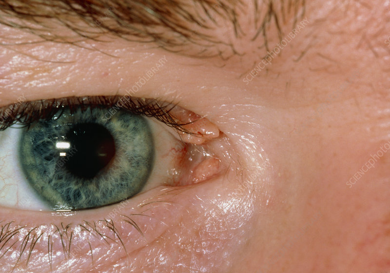 Wart on upper eyelid