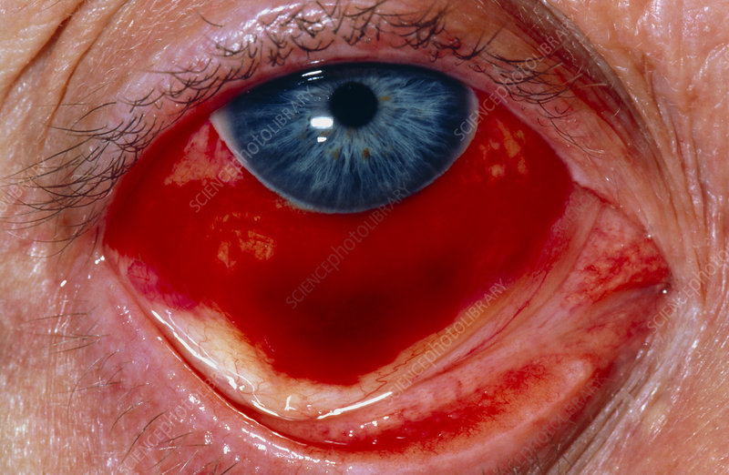 cure for conjunctival retention cyst