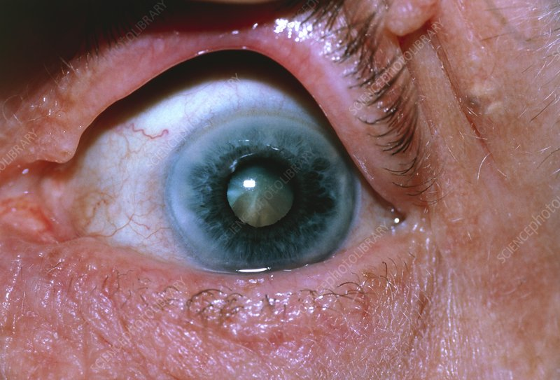 Eye Disorders Arcus Senilis And Cataract Stock Image