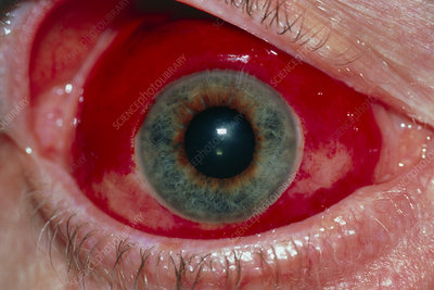 Close-up of eye: sub-conjunctival haemorrhage