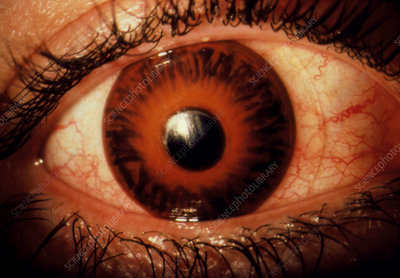 Glaucoma: swollen inflamed eye with contact lens