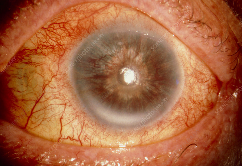Rubeotic glaucoma: rubeotic glaucoma