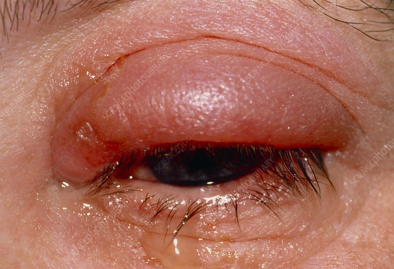 Swollen, red eye with conjunctivitis