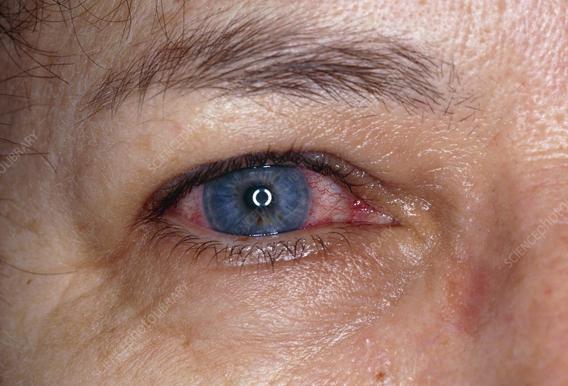 Acute iritis (eye) in adult