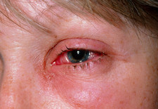 Viral conjunctivitis in the eye of a woman