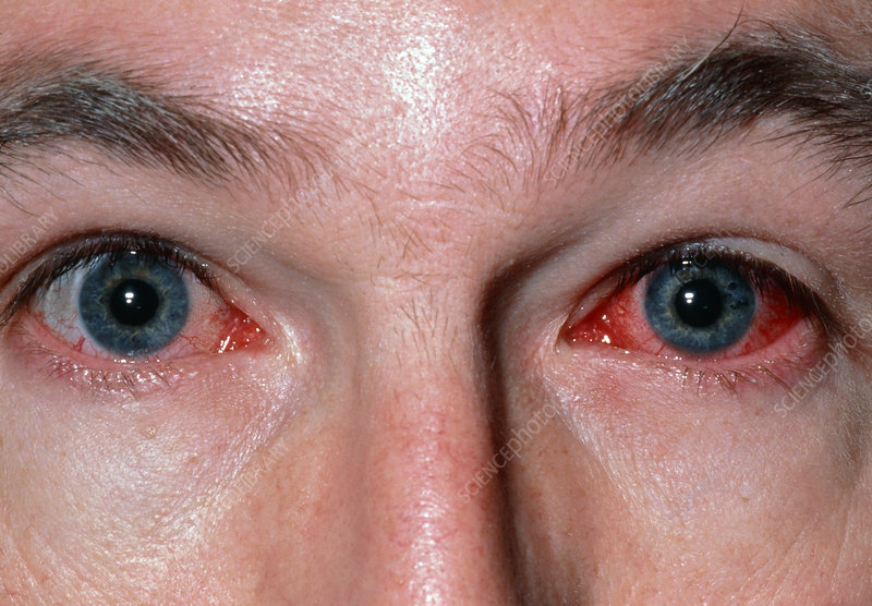 Inflamed eyes caused by conjunctivitis