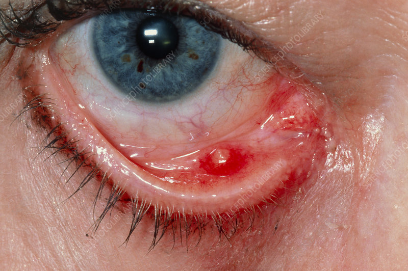 Meibomian cyst (chalazion) on lower eyelid
